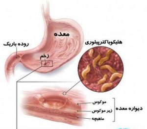 peptic-ulcer-disease-2