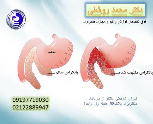 محمد روشنی 10 495x400 - پانکراتیت چیست؟ التهاب پانکراس چه علائمی دارد؟
