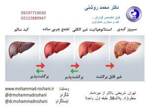 بیماری های کبدی