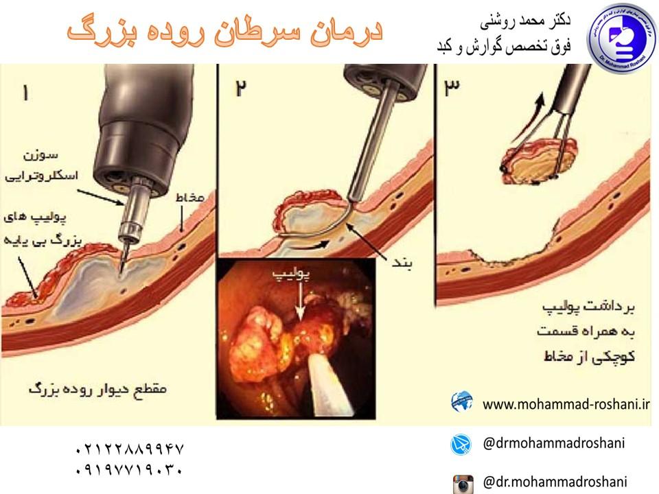 درمان سرطان روده با کولونوسکوپی