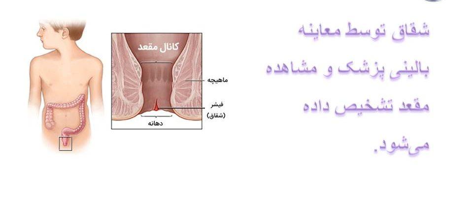 علت و تشخیص شقاق مقعدی