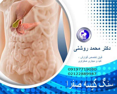 دکتر محمد روشنی 495x400 - سنگ کیسه صفرا